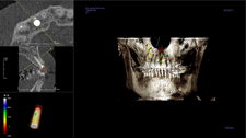 Implant Dentist Brentwood - A 3D Imaging Diagram 2