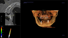 Implant Dentist Brentwood - A 3D Imaging Diagram 3