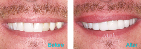 Brentwood Dentistry - 20 Minutes Smile before and after the treatment 1