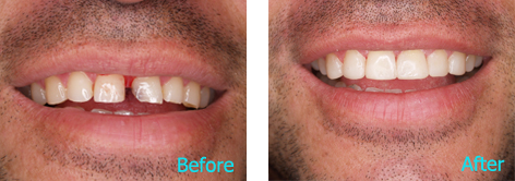 Brentwood Dentistry - 20 Minutes Smile before and after the treatment 2