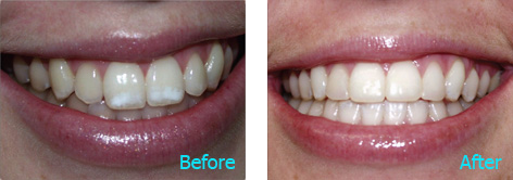 Brentwood Dentistry - 20 Minutes Smile before and after the treatment 3