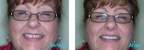 Brentwood Dentistry - 20 Minutes Smile before and after the treatment 4