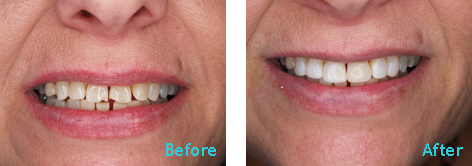 Brentwood Dentistry - 20 Minutes Smile before and after the treatment 5