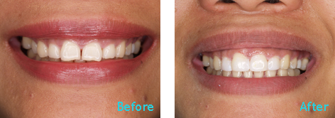 Brentwood Dentistry - 20 Minutes Smile before and after the treatment 6