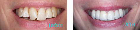 Cosmetic Dentist Brentwood CA - Cosmetic Dentistry before and after the treatment 1