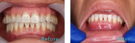 Gum Lift Rejuvenation Brentwood - Gum Lift Rejuvenation before and after the treatment 1