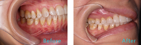Gum Lift Rejuvenation Brentwood - Gum Lift Rejuvenation before and after the treatment 2