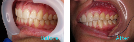 Gum Lift Rejuvenation Brentwood - Gum Lift Rejuvenation before and after the treatment 3