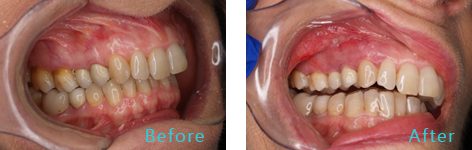 Gum Lift Rejuvenation Brentwood - Gum Lift Rejuvenation before and after the treatment 4