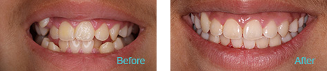 LaserProx Brentwood - LaserProx before and after the treatment 1