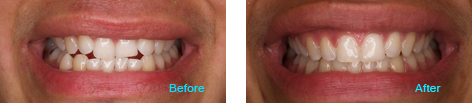LaserProx Brentwood - LaserProx before and after the treatment 2