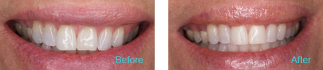 LaserProx Brentwood - LaserProx before and after the treatment 4