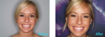 Pediatric Orthodontics Brentwood - Pediatrics and Orthodontics before and after the treatment 1