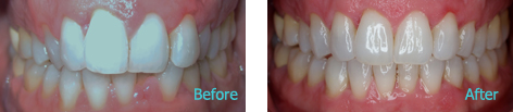 Pediatric Orthodontics Brentwood - Pediatrics and Orthodontics before and after the treatment 3