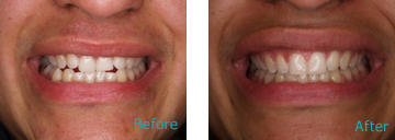 Pediatric Orthodontics Brentwood - Pediatrics and Orthodontics before and after the treatment 4