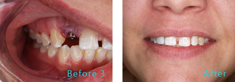 Tooth in a Day Brentwood CA - Tooth in a Day before and after the treatment