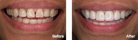 Veneers Brentwood - Veneers before and after the treatment 2