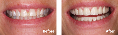 Veneers Brentwood - Veneers before and after the treatment 3