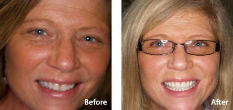 Veneers Brentwood - Veneers before and after the treatment 4