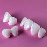 Dental Video - Bridge