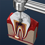 Dental Video - Root Canal