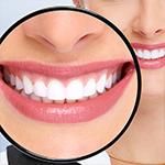 Dental Video - Teeth Whitening