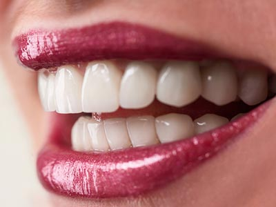 Affordable Implants Dental Brentwood at Brentwood Family Dental