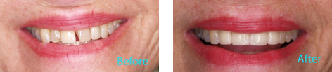 Dentist Brentwood Cosmetic Dentistry Before and after the treatment 1