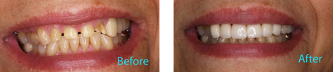 Dental Crowns and Bridges Brentwood - Dental Crowns and Bridges before and after the treatment