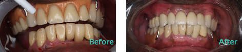 Dental Implants at Dentist Brentwood Before and after the treatment 2