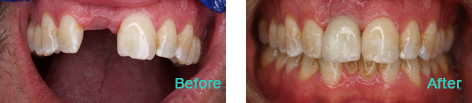Dental Implants Brentwood CA - Dental Implants before and after the treatment 4
