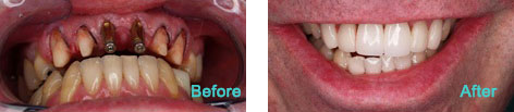 Dental Implants Brentwood CA - Dental Implants before and after the treatment 6