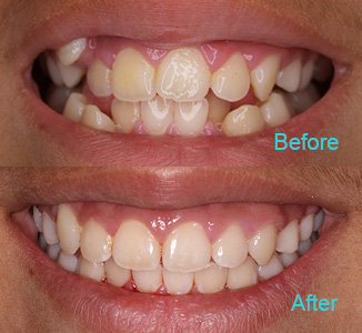 Dental Care Brentwood - Before and after the treatment Patient 1