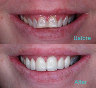 Dental Care Brentwood - Before and after the treatment Patient 10