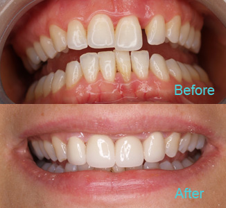 Dental Care Brentwood - Before and after the treatment Patient 11