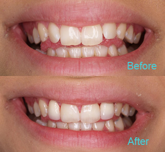 Dental Care Brentwood - Before and after the treatment Patient 12