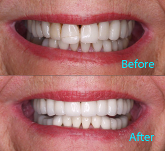 Dental Care Brentwood - Before and after the treatment Patient 13