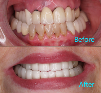 Dental Care Brentwood - Before and after the treatment Patient 14