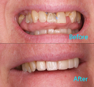 Dental Care Brentwood - Before and after the treatment Patient 15