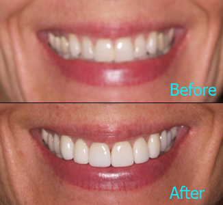 Dental Care Brentwood - Before and after the treatment Patient 16