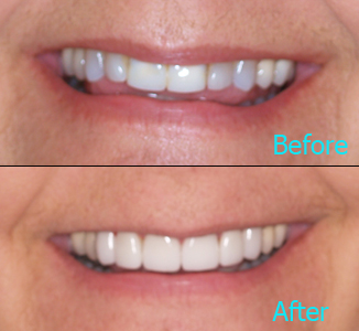 Dental Care Brentwood - Before and after the treatment Patient 17