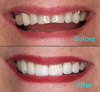 Dental Care Brentwood - Before and after the treatment Patient 18