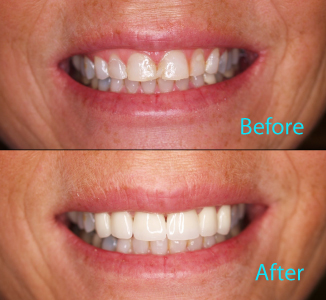 Dental Care Brentwood - Before and after the treatment Patient 19