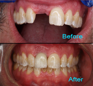 Dental Care Brentwood - Before and after the treatment Patient 2