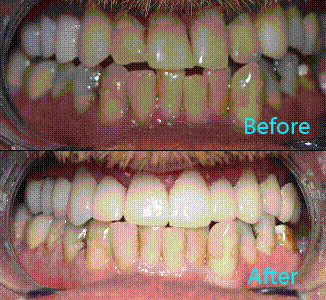 Dental Care Brentwood - Before and after the treatment Patient 20