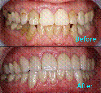 Dental Care Brentwood - Before and after the treatment Patient 21