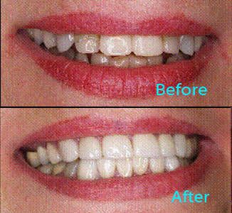 Dental Care Brentwood - Before and after the treatment Patient 22