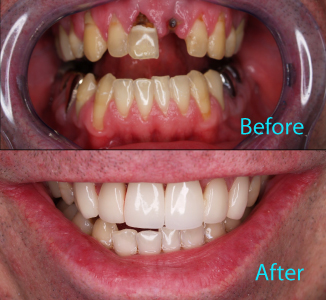 Dental Care Brentwood - Before and after the treatment Patient 23