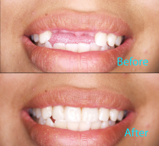 Dental Care Brentwood - Before and after the treatment Patient 24