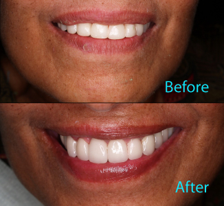 Dental Care Brentwood - Before and after the treatment Patient 25